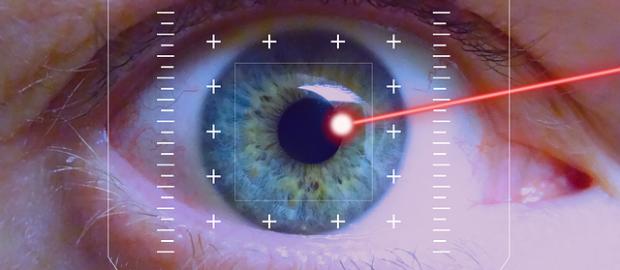 Oko laser