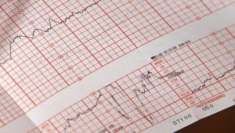 EKG – ile kosztuje, gdzie można zrobić badanie serca EKG?