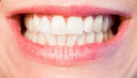 Ile kosztuje aparat na zęby? Typy aparatów na zęby